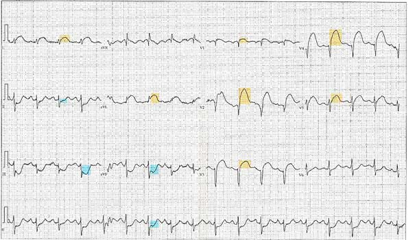 12_Lead_EKG_ST_Elevation_