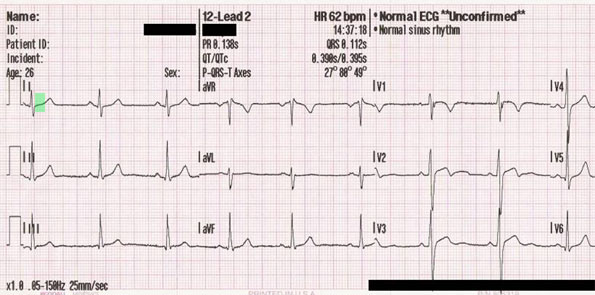 heart attack ecg. or heart attack,
