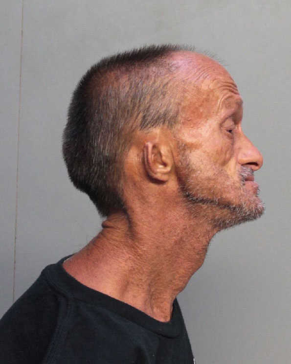 Jonathan Crenshaw, Miami Beach stabbing suspect